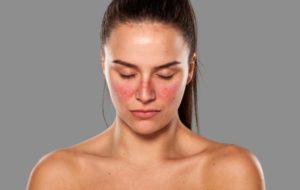 El Lupus y como combatirlo